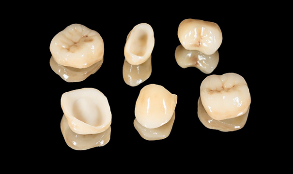 Six different types of dental crowns, all of different sizes and shapes