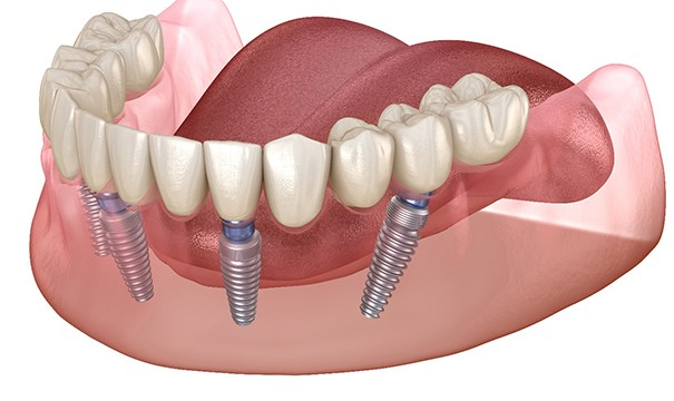 Graphic of implant-retained denture in Newton