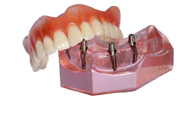 Implant-retained denture in Newton model