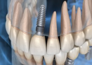 model of single dental implant at dentist office