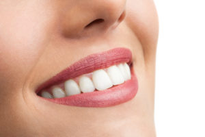 Beautiful white smile with veneers from a cosmetic dentist