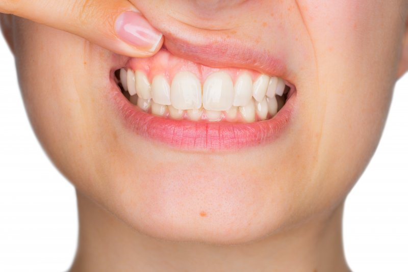 Closeup of woman pointing to her gums